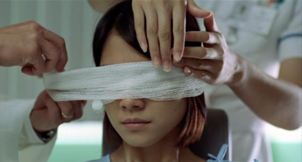 Eye Transplant