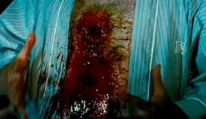 Needle Chest Hole
